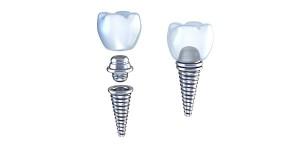 جراحی ایمپلنت های دندانی به چند روش انجام می شوند؟