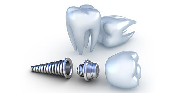 تاریخچه دندانپزشکی ایمپلنت و قرارگیری آن در استخوان