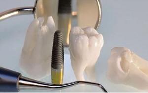 روش های بالینی درمان ایمپلنت و جراحی