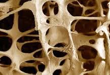 بارگذاری تدریجی استخوان