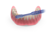 Important areas to clean Overdentures
