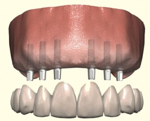 Replacing all teeth with a fixed prosthesis