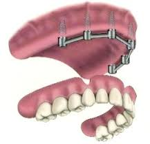 Replacing all teeth with a removable prosthesis