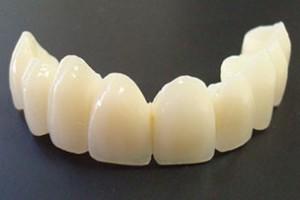نکات پروتزی در دندانپزشکی ایمپلنت