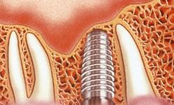 بررسی تراکم و تحلیل استخوان و انتقال استرس در ایمپلنت