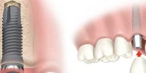بیرون کشیدن دندان و وارد کردن بلافاصله ی ایمپلنت