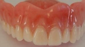 ماگزیلای قدامی بی دندان