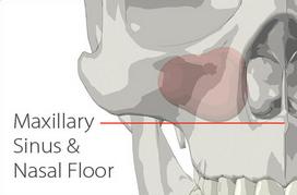 Measurement of Bone