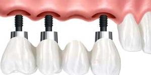 Bridging the Gap With Dental Implants