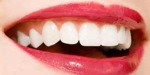 پرکردن دندان بدون نیاز به مواد مصنوعی