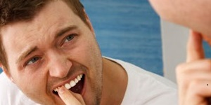Tooth Extraction for Gum Disease