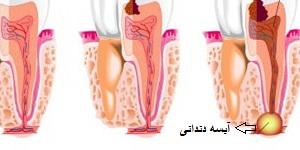 Dental Abscess Overview