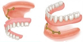 Tissue-supported dental implant prosthesis or overdenture