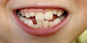 Dental Health With Crooked Teeth and Misaligned Bites