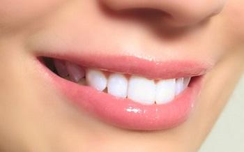 ایمپلنت های دندانی چیست؟