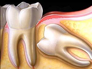 آیا باید دندان عقل را کشید؟