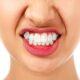 دندان قروچه و ایمپلنت دندان
