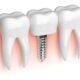 شکل و ساختار ایمپلنت دندان