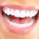 مقاومت ایمپلنت دندان در مقایسه با دندان های طبیعی