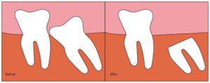 کرونکتومی دندان