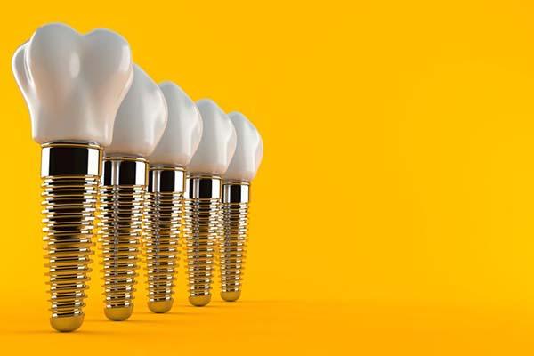 جایگزینی دندان با ایمپلنت دندان