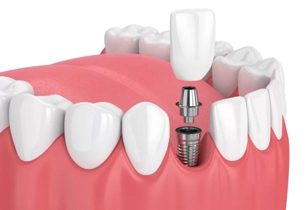 چالش های انجام ایمپلنت دندان