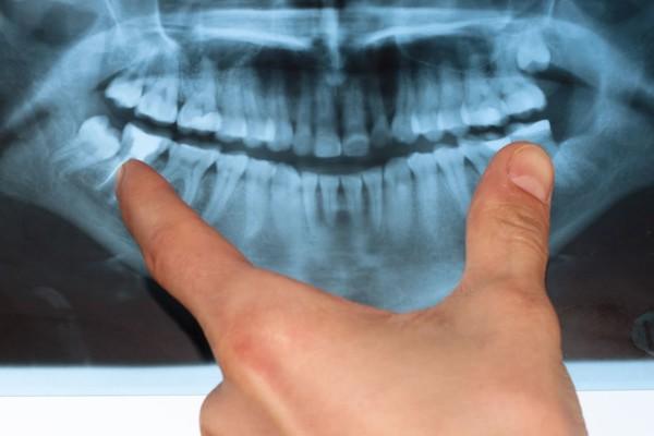 دندان های نهفته