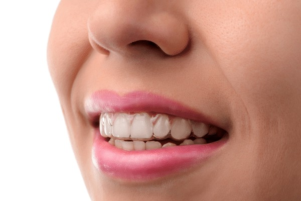 نگهدارنده دندان