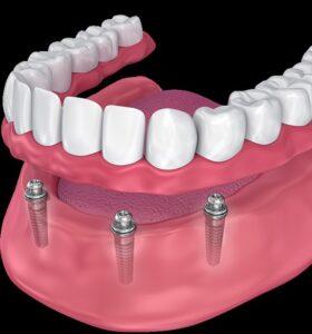 جایگزین دندان های مصنوعی