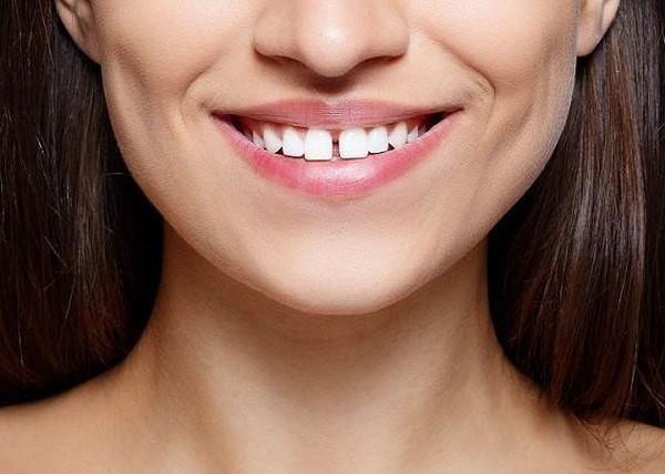 گپ بین دندان ها